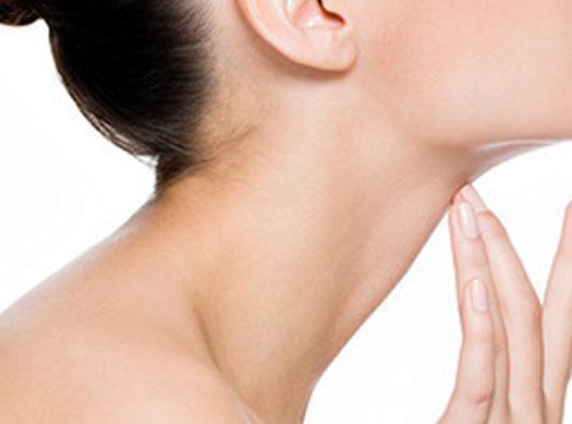 Levantamiento de Cuello Cervicoplastia