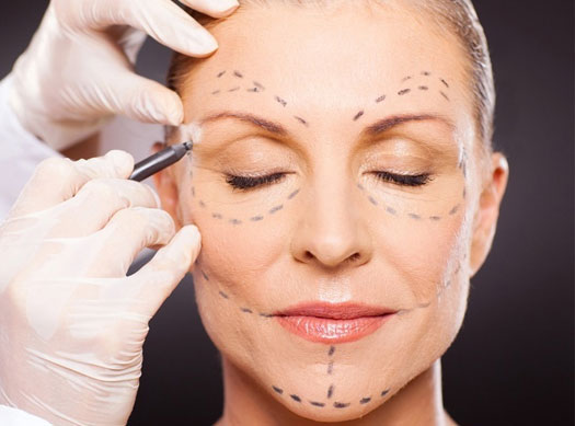 Levantamiento Facial Ritidoplastia